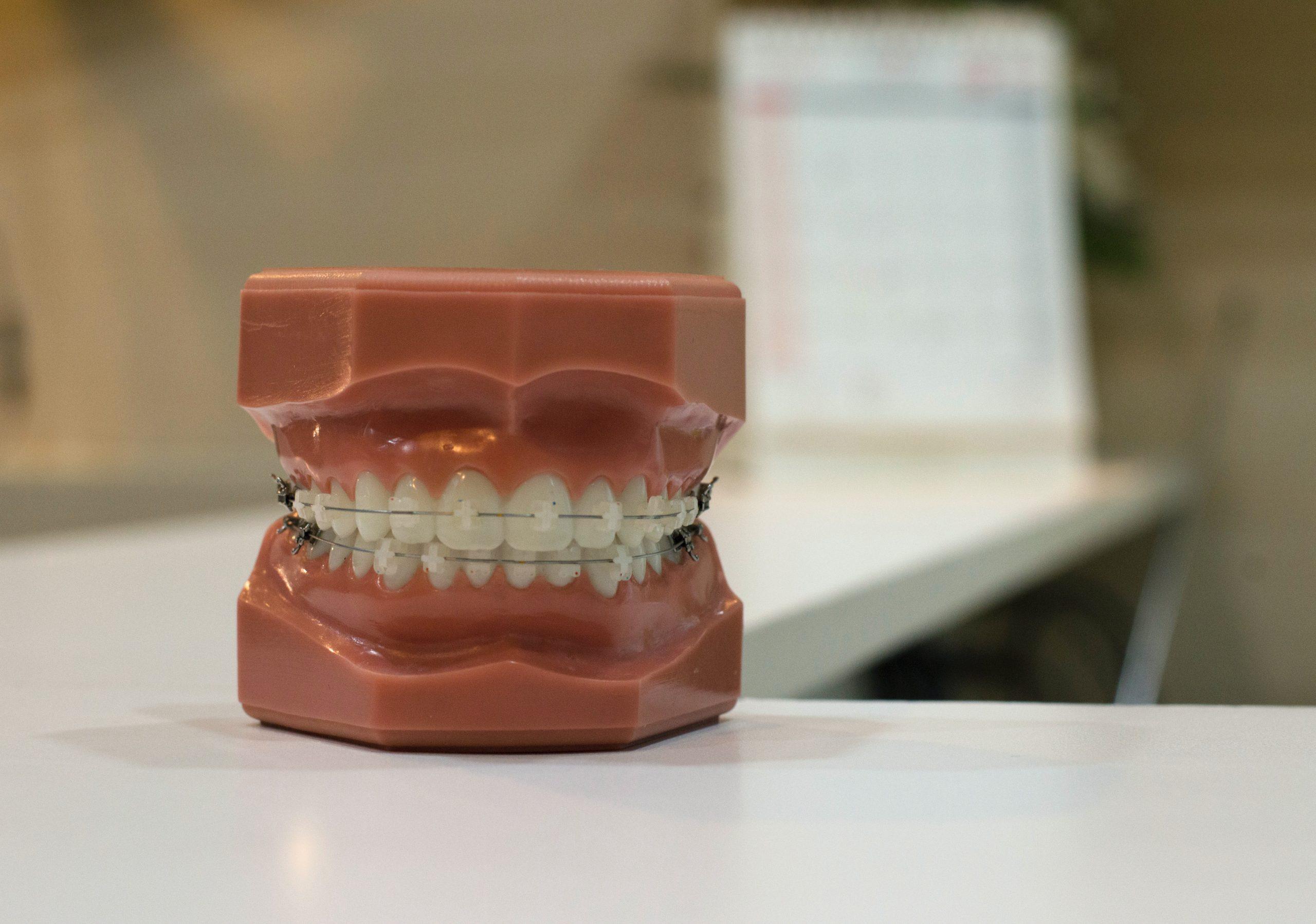 Foto de dientes con unos brackets.